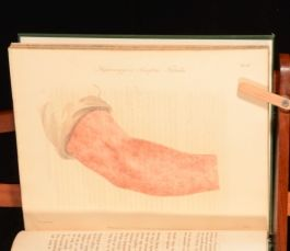 1810 Observations on the Hydrargyria or Vesicular Disease George Alley